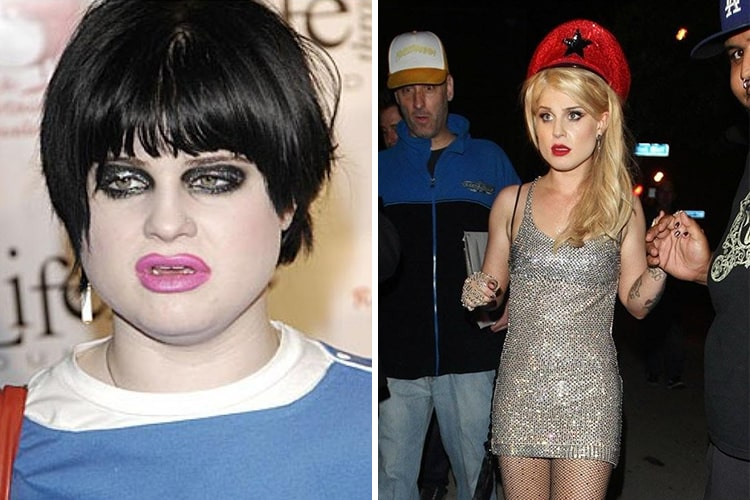 Incredible Celebrity Weight Loss Transformations - Page 2 ... Kelly Osbourne Weight Gain